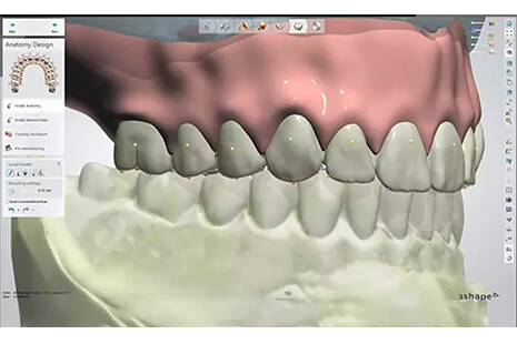Success with Digital Dentures