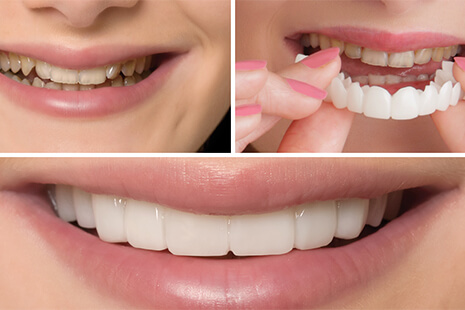 Manufacturing Snap-On Smiles for Functional and Cosmetic Restorative Solutions