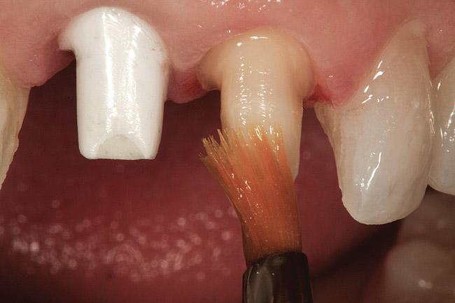 Отек после установки зубного импланта что делать