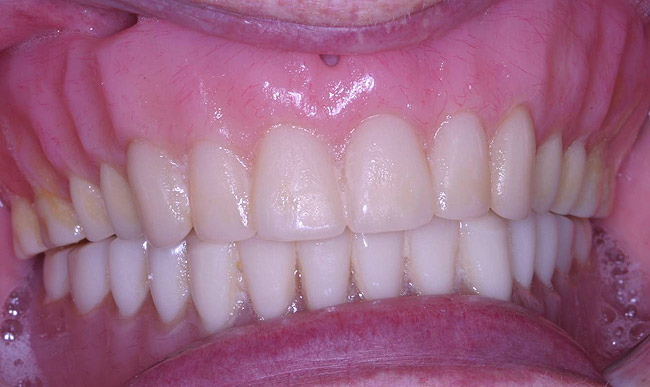 The importance of edentulous impressions cdeworld continuing the importance of edentulous impressions cdeworld continuing dental education fandeluxe Gallery