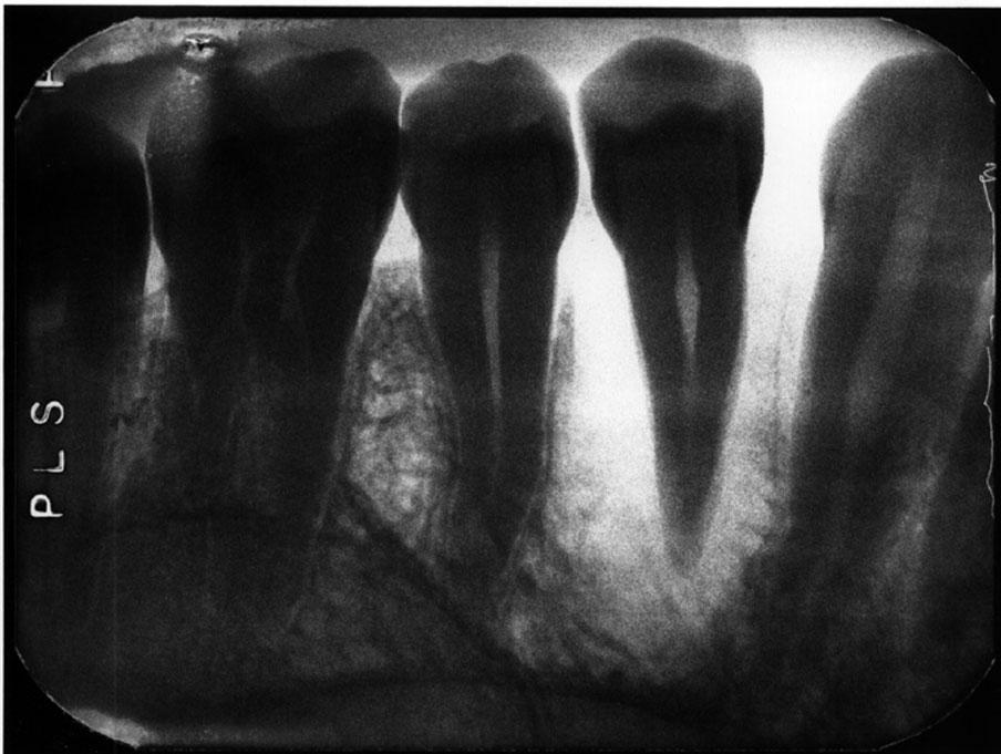 Dental Radiographic Pitfalls and Errors | CDEWorld - Continuing ...