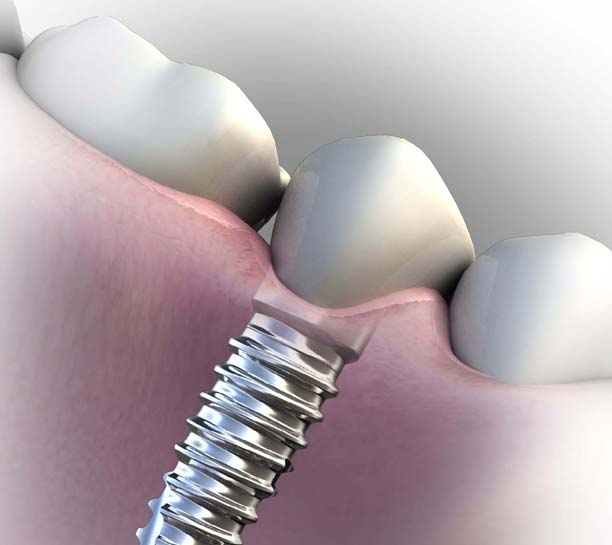 Planning Considerations and Retention Options for Implant Restorations eBook Thumbnail