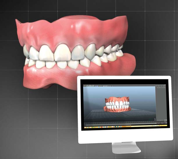 Introducing a Digital Denture Workflow Into Daily Practice eBook Thumbnail