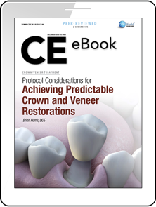 Protocol Considerations for Achieving Predictable Crown and Veneer Restorations eBook Thumbnail