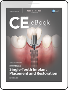 Demystifying Single-Tooth Implant Placement and Restoration eBook Thumbnail