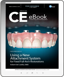 Using a New Attachment System for Fixed Full-Arch Restorations eBook Thumbnail