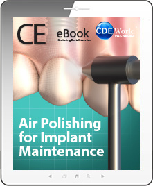 Air Polishing for Implant Maintenance eBook Thumbnail