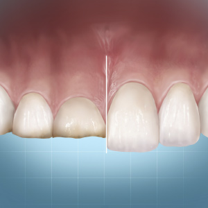 "Minimally Invasive Restoration of Worn Dentition: Understanding ""Complete Dentistry"" Concepts eBook Thumbnail"