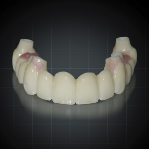 Occlusal Considerations in Full-Arch Implant-Supported Fixed Prosthetics eBook Thumbnail