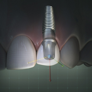 Digital Scanning and Implants eBook Thumbnail