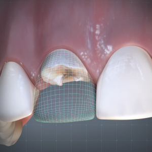 Managing Tooth Loss and Esthetics in a Single Visit eBook Thumbnail