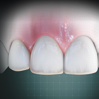 Esthetics and Strength of Dental Ceramics, With ZLS Case Studies eBook Thumbnail
