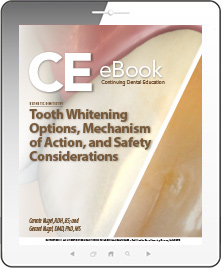 Tooth Whitening Options, Mechanism of Action, and Safety Considerations eBook Thumbnail