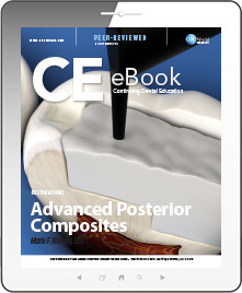 Advanced Posterior Composites eBook Thumbnail