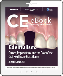 Edentulism: Causes, Implications, and the Role of the Oral Healthcare Practitioner eBook Thumbnail
