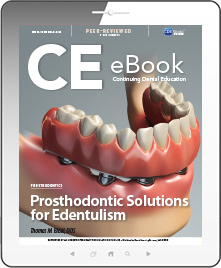 Prosthodontic Solutions for Edentulism eBook Thumbnail