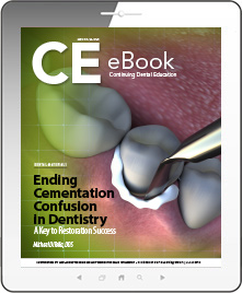 Ending Cementation Confusion in Dentistry eBook Thumbnail