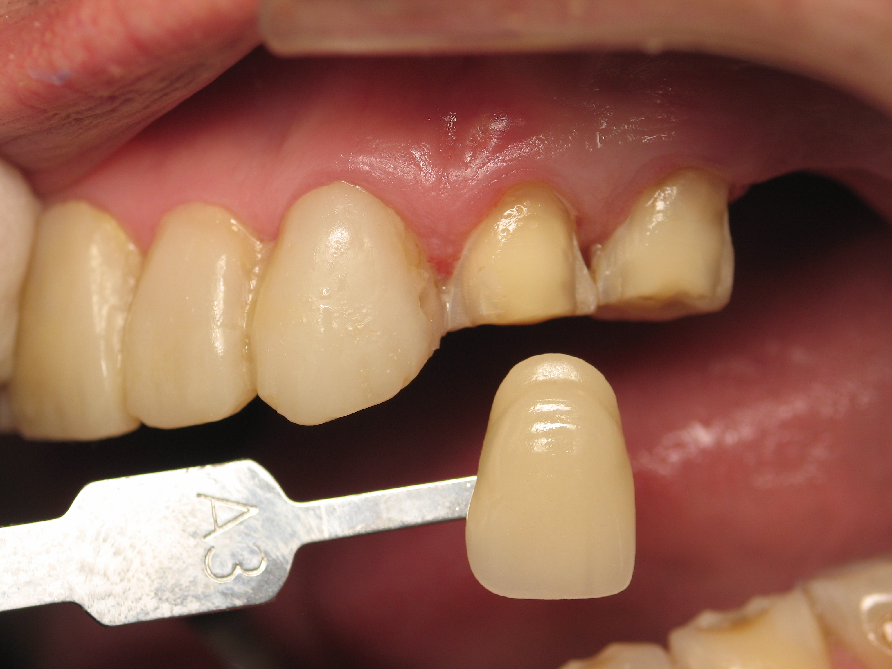 The Biomimetic Smile Makeover: Conserving and Strengthening Tooth