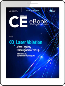 CO2 Laser Ablation of the Capillary Hemangioma of the Lip eBook Thumbnail