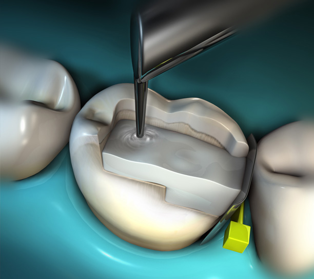 Bulk-Fill Composites for Class II Restorations eBook Thumbnail