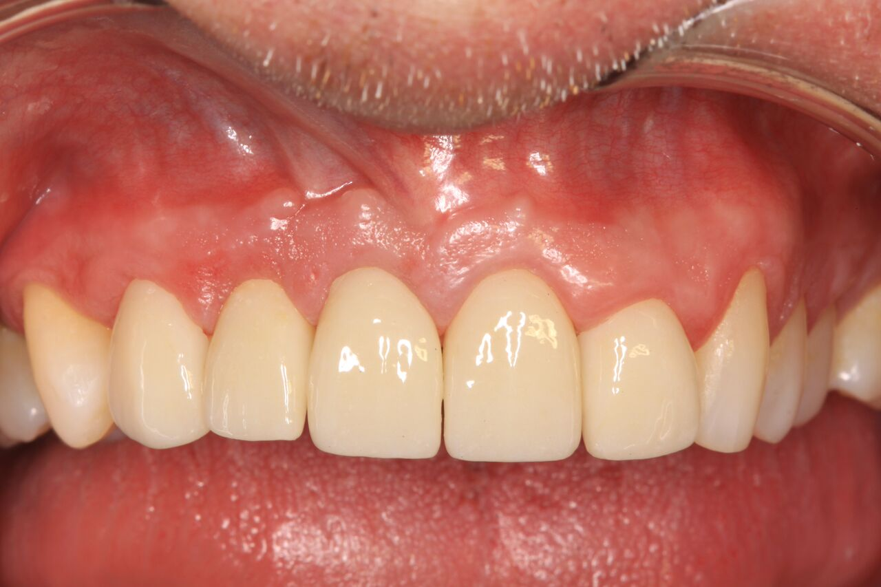 Unique Benefits Of Immediate Implants With Immediate Provisional
