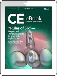"""Rules of Six""—Diagnostic and Therapeutic Guidelines for Single-Tooth Implant Success eBook Thumbnail"