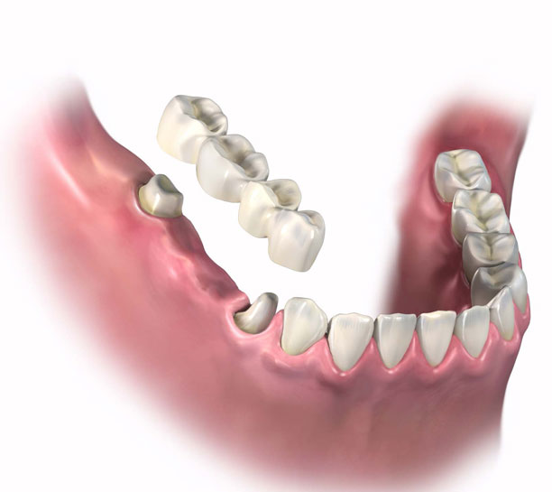 Clinical Concerns and Common Misconceptions Regarding Zirconia Restorations eBook Thumbnail