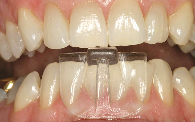 A Clinician S Guide To Occlusal Splint Therapy Cdeworld