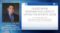 Managing Defects in the Anterior Pre-Maxilla Webinar Thumbnail