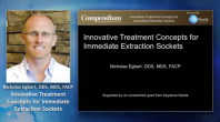 Innovative Treatment Concepts for Immediate Extraction Sockets Webinar Thumbnail