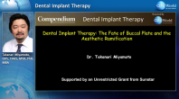 Dental Implant Therapy: The Fate of Buccal Plate and the Aesthetic Ramifications Webinar Thumbnail