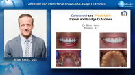 Consistent and Predictable Crown and Bridge Outcomes Webinar Thumbnail