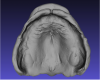Fig 5. Scanned maxillary impression.