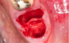 Fig 5. Atraumatic tooth removal.
