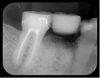 Fig 15. Radiograph showing radiopacity of material.