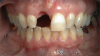 Fig 1. A female patient presented missing tooth No. 8, which would be replaced with a single implant restoration.