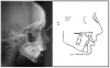 Figure 21. Cephalometric radiographic images can be superimposed to study changes in jaw and tooth position.