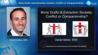 Bone Grafts and Extraction Sockets: Conflicts or Companionship? Webinar Thumbnail