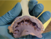 Figure 4: Preoperative anterior triple tray impression with an orientation notch drilled into the handle to indicate both the maxillary side and the incisor midline.