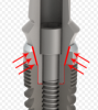 Fig 6. A cross-sectional illustration of a conical/hex connection illustrates the concept of preload. Although the screw head clamps the abutment down, the arrows indicate the areas of greatest stress and force that create the preload.