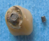 Fig 9. Cyclic fatigue can cause an abutment screw to break from the abutment, requiring removal from the implant.