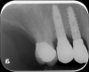Fig 14. Radiograph showing an authentic implant/abutment complex at tooth No. 4 and an incompatible implant/abutment complex at tooth No. 5, where the entire preload is on the screw.