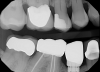 Fig 15. Radiographic view of an implant restoration at tooth No. 29; the abutment/restoration sits on the very edge of the implant collar and is clearly not made for that platform.