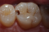 Fig 6. Case 1. Initial opening of tooth reveals caries.