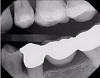 Fig 7. Case 2. Bitewing radiograph shows no indication of interproximal or recurrent caries around the composite restoration on tooth No. 13.