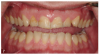 Fig 7. A man presented with significant tooth surface loss and a desire for an esthetic smile makeover but with minimally invasive treatment and as little tooth preparation as possible.
