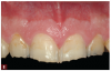 Fig 8. Preoperative photographs were taken as part of the evaluation process, including a close-up view of the maxillary central incisors demonstrating the extent of wear.