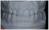 Fig 11. A diagnostic wax-up was created to guide the case and, in particular, placement of composite restorations on the mandibular anterior teeth and posterior teeth.