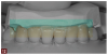 Fig 12. The diagnostic wax-up enabled a solution-driven preparation, as it indicated where the teeth would ultimately be positioned.