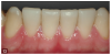 Fig 13. View of the anterior mandibular pre-evaluative provisional restorations, which could be prepared to ensure as minimal tooth removal as possible.